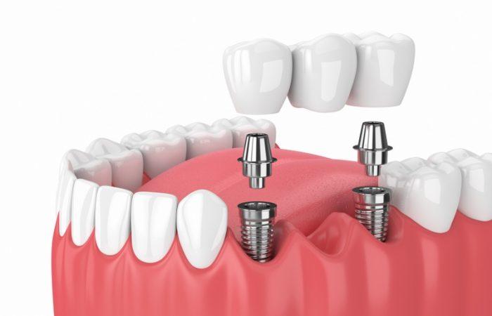 Implant Retained Bridges - Woodbury Park Dental