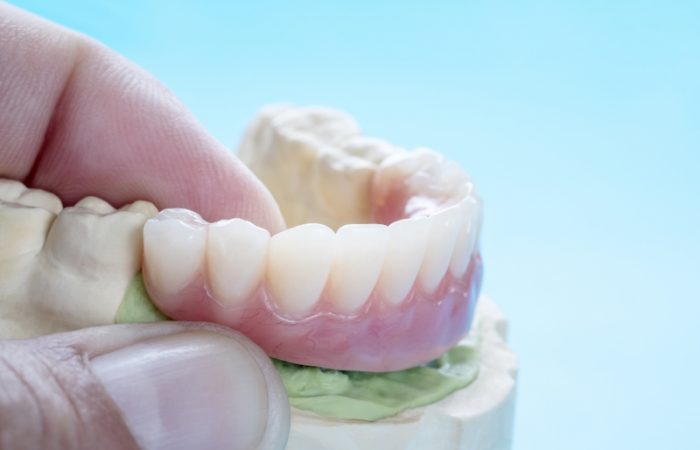 Prosthodontics - Woodbury Park Dental