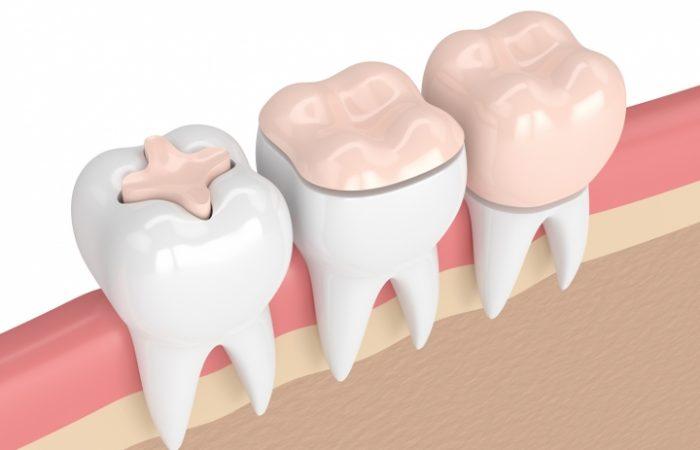 Inlays and Onlays - Woodbury Park Dental